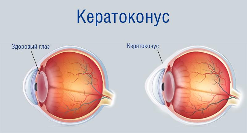 Ceratonus_eye_obp